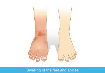 Swelling of The Feet and Ankles Treatment in Sugar Land